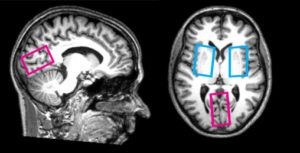thumbnail_brain image