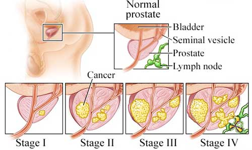laser treatment for prostate cancer