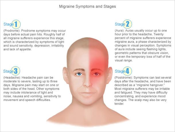 migraine-headache-symptoms