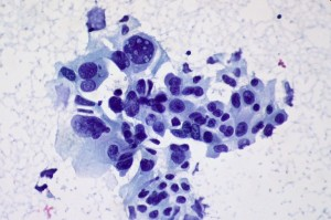 photo of cancer cell 1